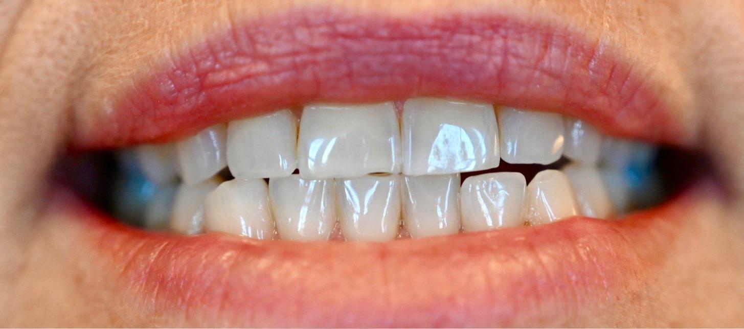 närbild på mun med läppar och tänder