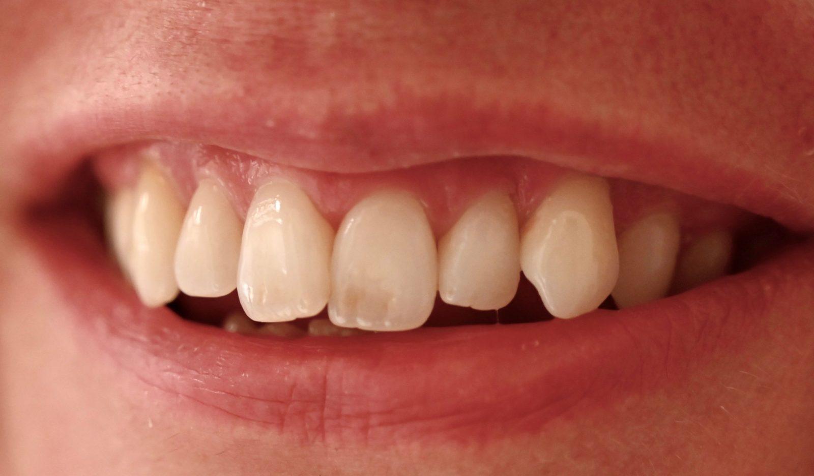närbild på mun, tänder och läppar som ler