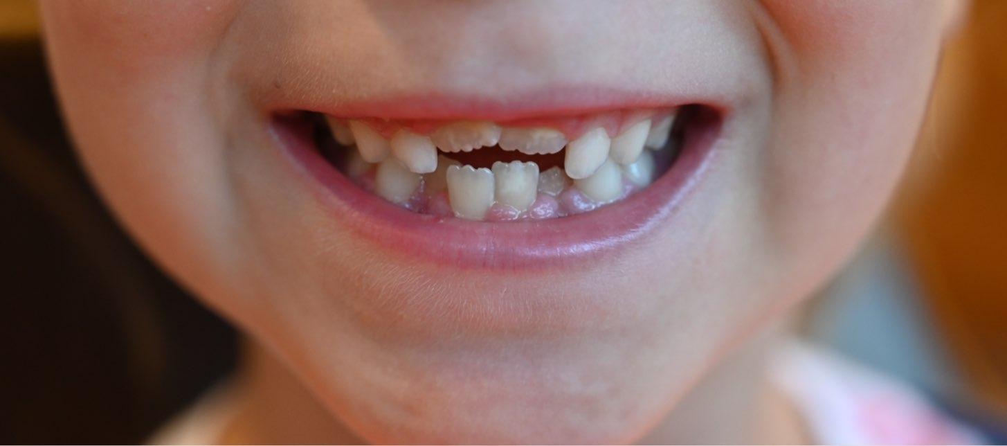 barntänder. närbild på mun där nya framtänder håller på att växa fram